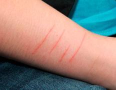 Почему подросток режет себе руки