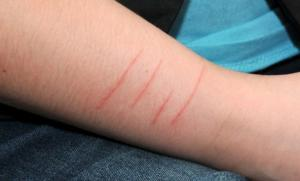 Почему ребенок режет себе руки